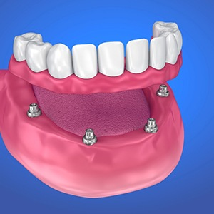 digital model of an implant-supported denture