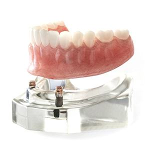 plastic model of denture and dental implants