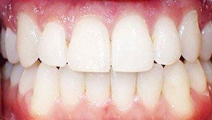 case 1- after Invisalign