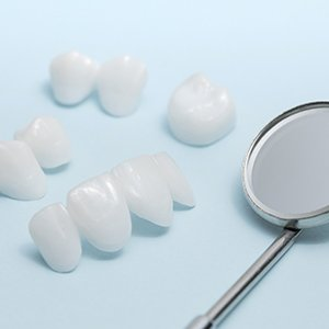 Dental bridges and crowns for full mouth reconstruction.