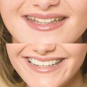 before and after snap on smile