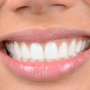 smile with cosmetic bonding