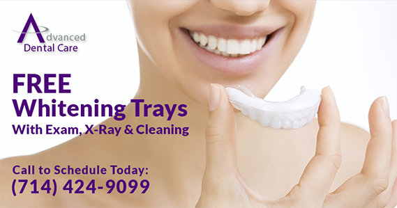whitening tray special
