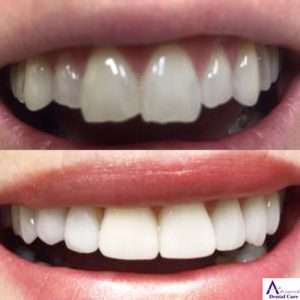 dental veneers - porcelain veneers - cosmetic dentistry - best dentist costa mesa - newport beach - orange county - best dentist open now - saturday dentist - costa mesa dentist - invisalign - delta dental - metlife dental - cigna dental - guardian dental