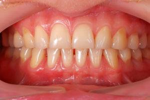 close-up of gums