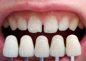 Veneers compared to imperfect teeth.