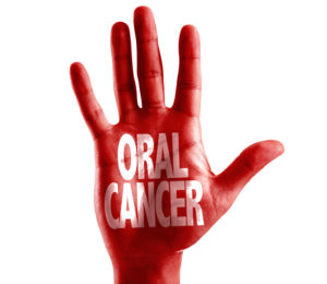 oral cancer written on hand