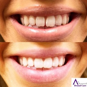 tooth bonding - composite - cosmetic dentistry - cosmetic dentist - costa mesa - newport beach - irvine - oc