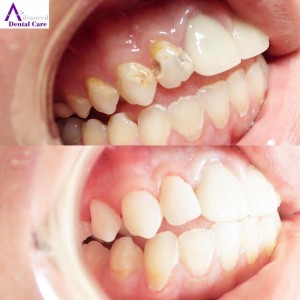 tooth bonding - composite - cosmetic dentistry - cosmetic dentist - costa mesa - newport beach - irvine - oc- implant & cosmetic dentistry