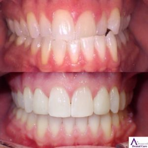 dental veneers - porcelain veneers - cosmetic dentistry - best dentist costa mesa - newport beach - orange county - best dentist open now - saturday dentist - costa mesa dentist - invisalign - delta dental - metlife dental - cigna dental - guardian dental