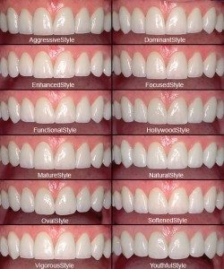 Porcelain Veneers - Costa Mesa - Cosmetic Dentist - Advanced Dental Care - Dr. William Dickerson 12-style LVI Smile Library