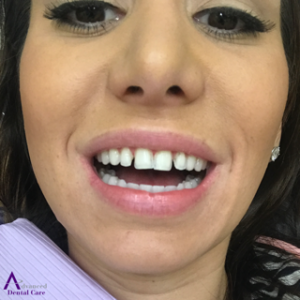 Porcelain Veneers - Prepped Teeth - Cosmetic Dentistry - Costa Mesa - Advanced Dental Care