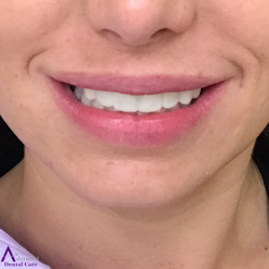 Porcelain Veneers - Temporary Veneers - Cosmetic Dentistry - Costa Mesa - Advanced Dental Care