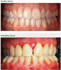 Summit-dental-2013-08-healthy-gums