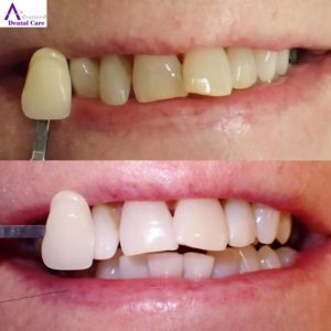 Dr. Jeremy Jorgenson - Costa Mesa Dentist - Emergency Dentist - Saturday Dentist - Dental Crowns - Dental Bridges - Dental Implants - Invisalign - Veneers - Teeth Whitening