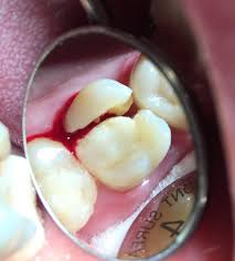 cracked tooth - emergency dental - dental emergency - dentist open now - dentist near me - bleeding tooth - tooth pain - chipped tooth
