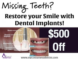 Your dentist for dental implants in Costa Mesa.