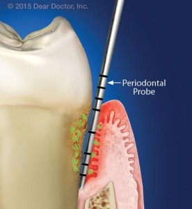 periodontal disease costa mesa dentist advanced dental care best dentist in orange county