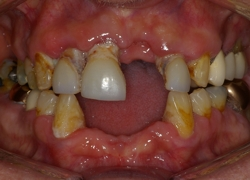 gum disease costa mesa