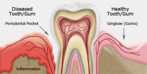 Gum Disease costa mesa ca