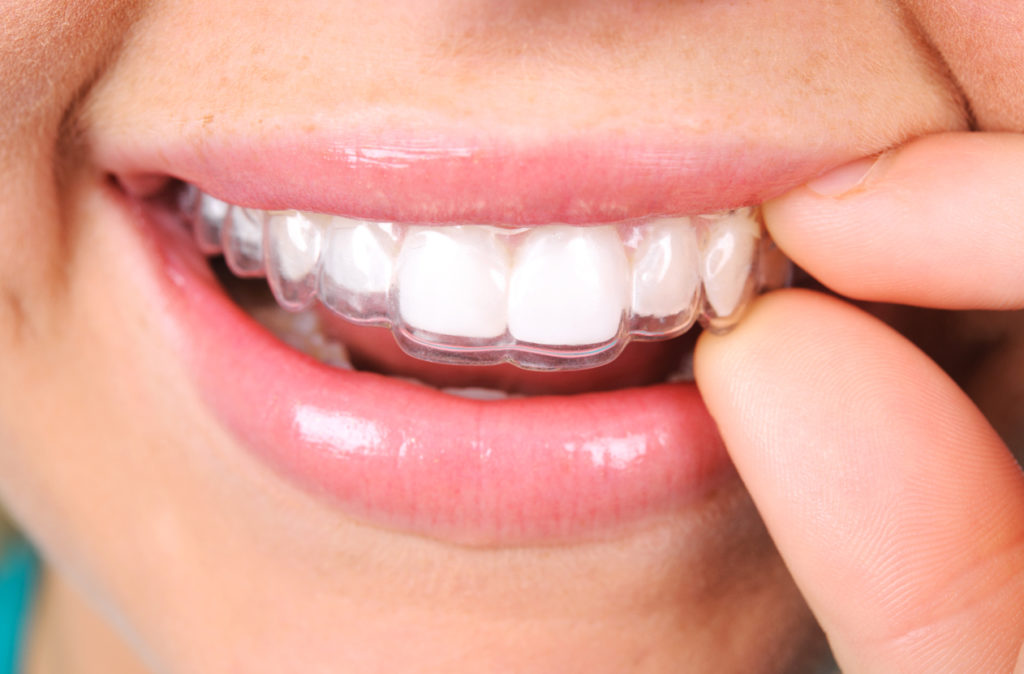 teeth whitening trays and bleaching gel - at home teeth whitening