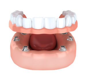 Do you know what could happen if you don't get dental implants in Costa Mesa in place of a lost tooth?