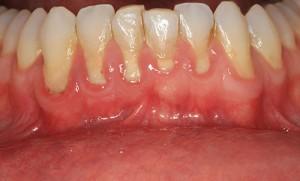 periodontal-disease -boneloss