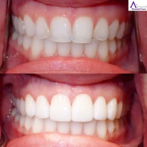 costa mesa dentist - procelain veneers - implant & cosmetic dentistry - beautiful teeth - close up teeth - dental veneers - old dental bonding - dental crowns - new teeth - hollywood smile - dentist open now - dentist near me